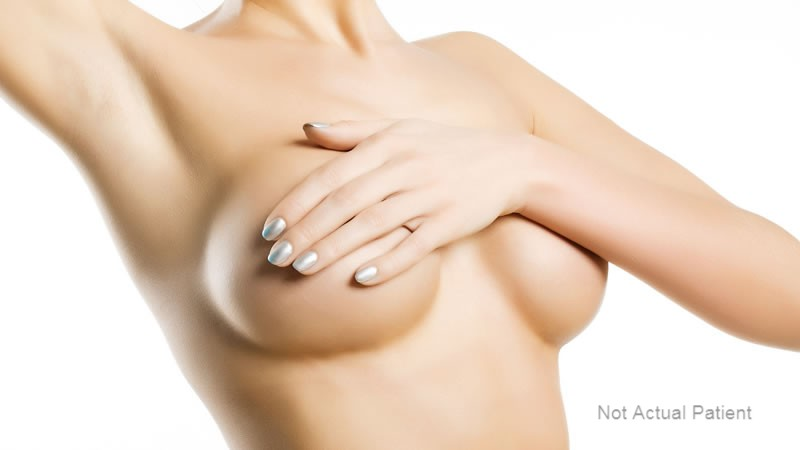 Breast Reductions Melbourne