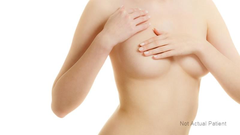 Breast Lift Melbourne