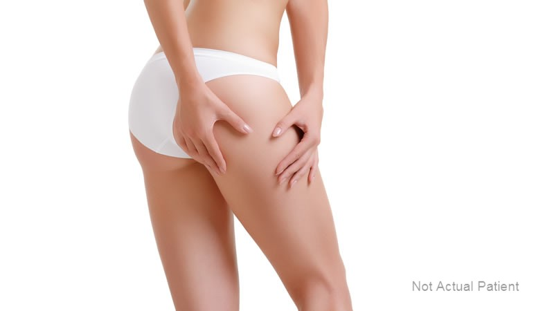 Cosmetic Thigh Lift