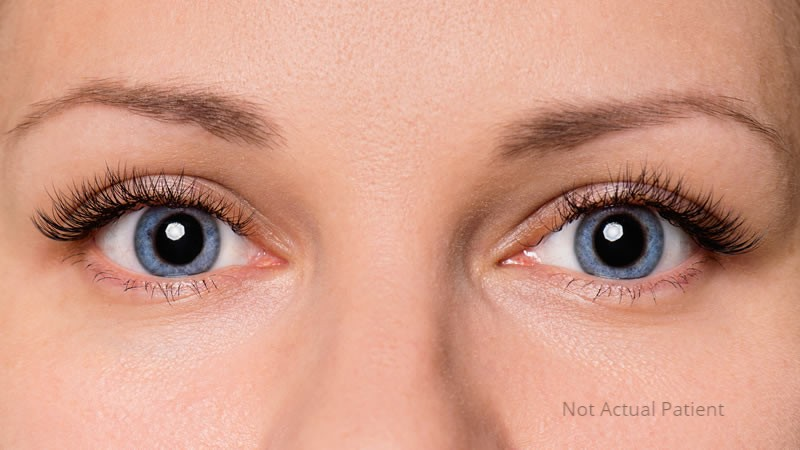Eyelid Surgery Melbourne